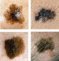 Signs and characteristics of melanoma vary.