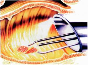 Transanal Endoscopic Microsurgery Tem Uc Health