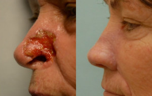Nasal reconstruction. Forehead and cheek flap, cartilage grafting. Appearance at one year.
