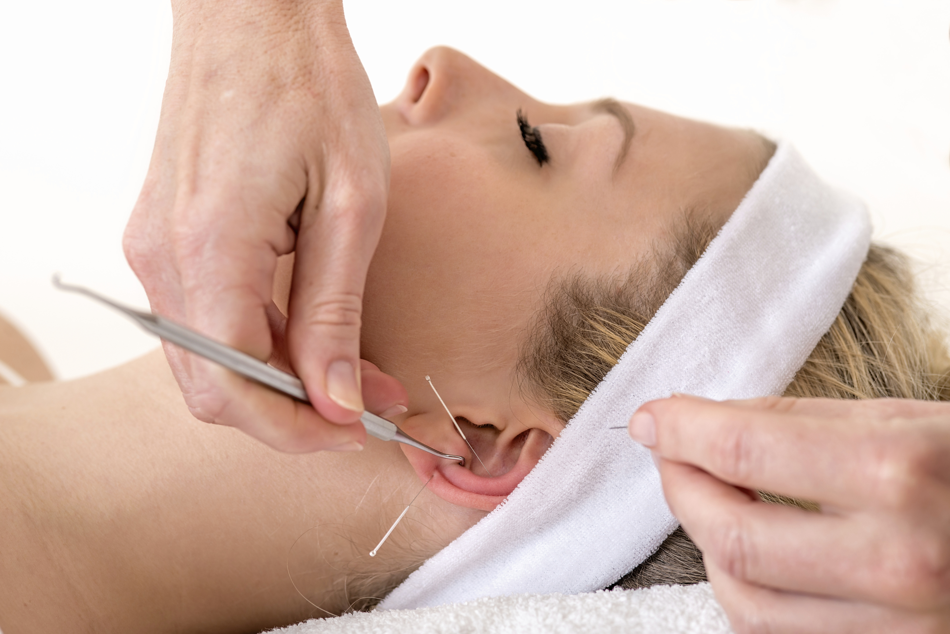 Image result for acupuncture treatment