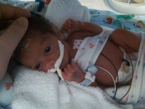 Braylon as a newborn in the UC Medical Center Level III NICU
