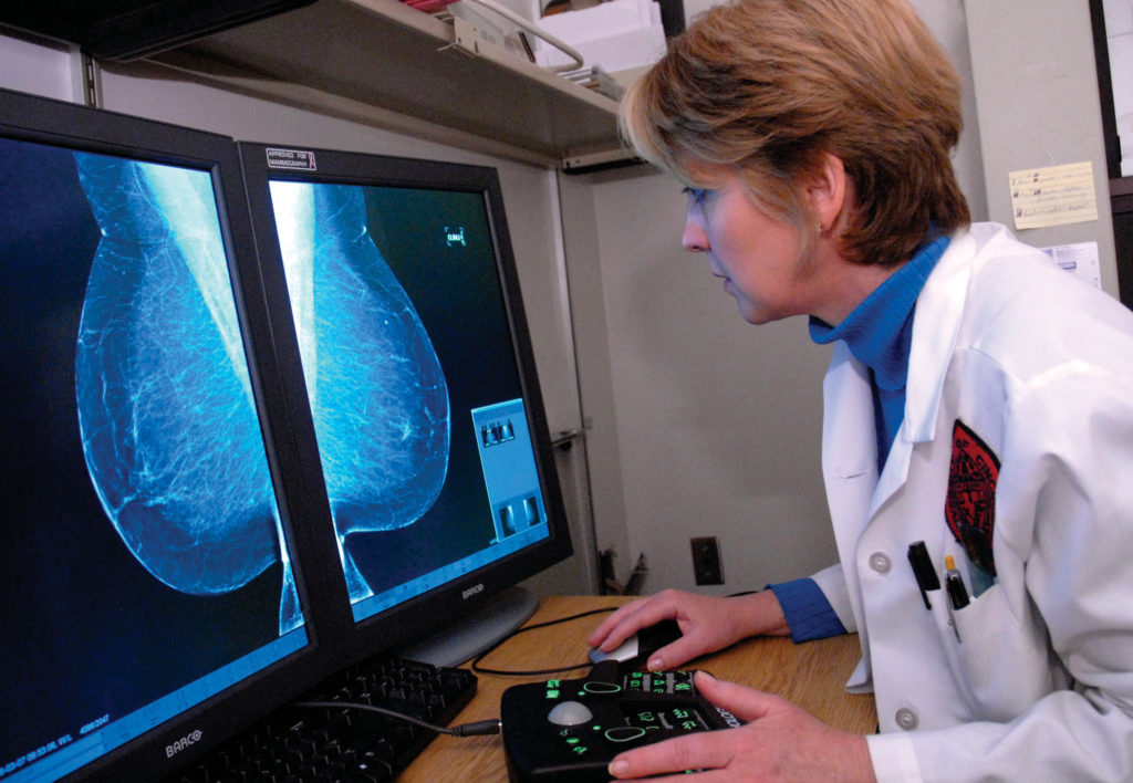 Mary Mahoney, MD, reviews a digital mammogram.