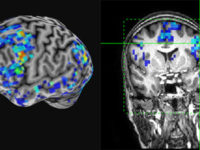 fMRI scans of a brain