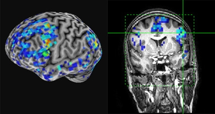 fMRI images of brains