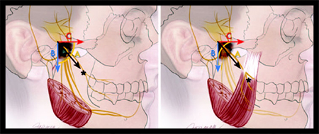 Illustration of nerve transfer procedure for facial reanimation.