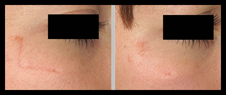 Black cock in my wife mouth