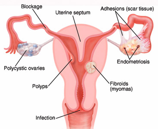 Cervical-Uterine Factor
