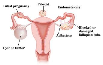 Pelvic & Reproductive Surgery