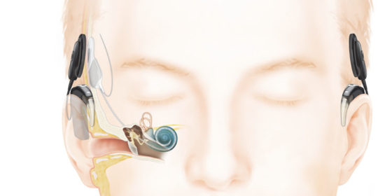Technological Advances and Research Continue to Transform Hearing Outcomes