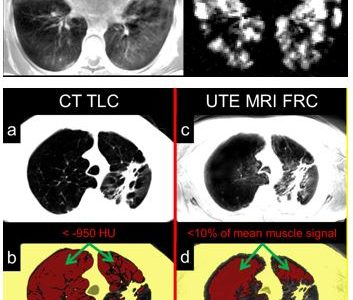Novel MRI Approaches Provide Risk-free High Resolution Images of Lung Structures